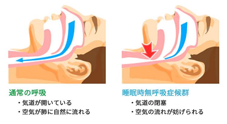 扁桃腺肥大 首